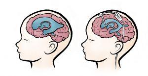Piirroskuvassa kaksi vauvan päätä, molemmissa näkyy aivojen rakenne. Ensimmäisessä kuvassa aivokammiot ovat laajentuneet, toisessa kuvassa piirretty suntti eli silikoninen letku jonka yläpää on aviokammiossa ja letku johtaa alaspäin. Aivokammiot eivät ole enää laajentuneet.